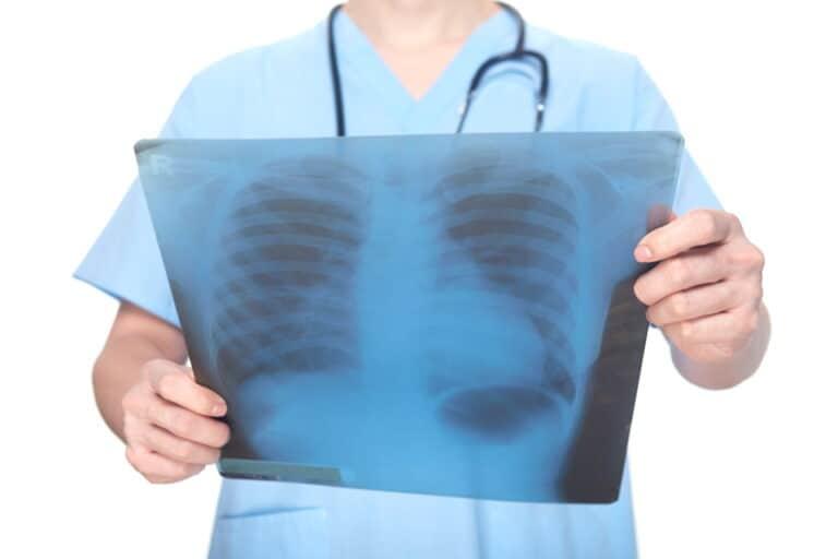 Radiologia de Intervenção